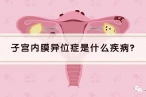 【科普小讲堂】子宫内膜处处乱跑——子宫内膜异位症