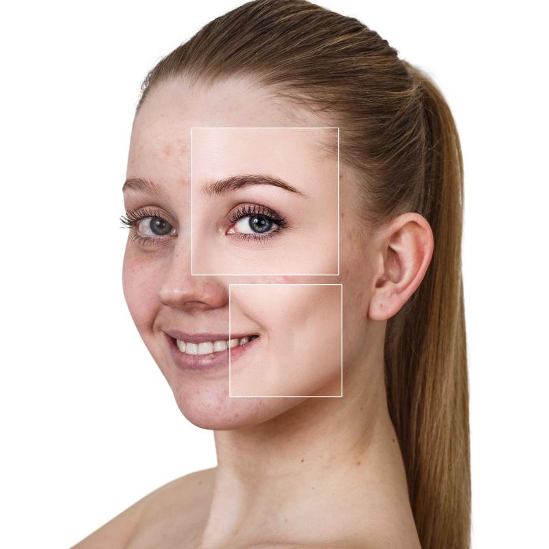 脸上出现隐隐约约色斑怎么办祛斑美容还需用对方法