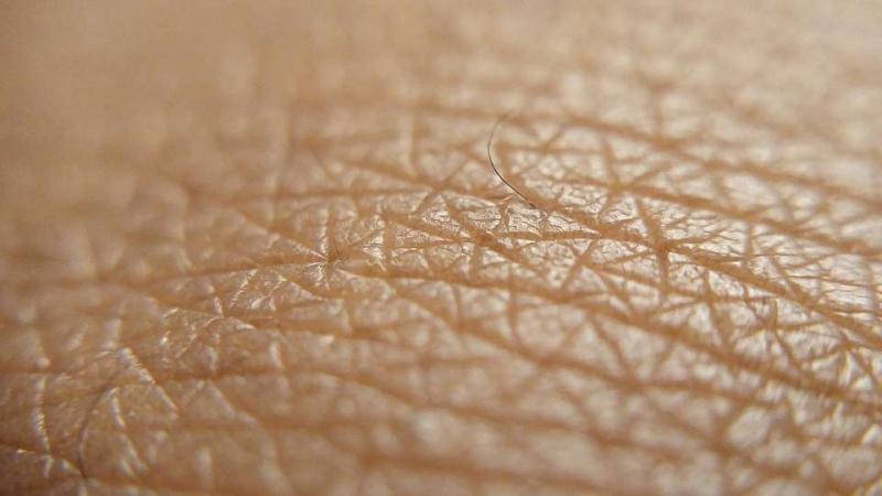 引起皮肤过敏的因素皮肤过敏饮食注意什么